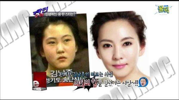 '미스티' 김남주, 최초의 성형고백 스타 1호! '용된 스타'