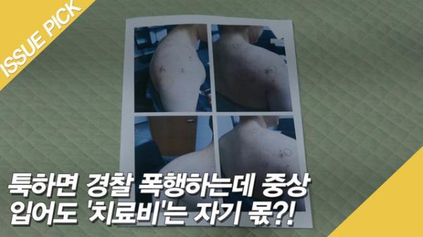 툭하면 경찰 폭행하는데 중상 입어도 '치료비'는 자기 몫?!