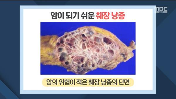 끈적끈적한 점액 주머니 '췌장 낭종'