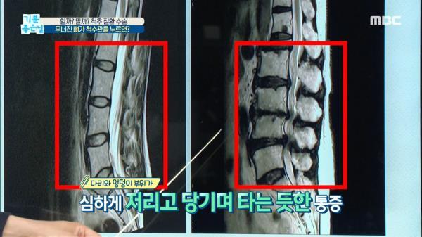 무너진 뼈가 척수관을 누르면?